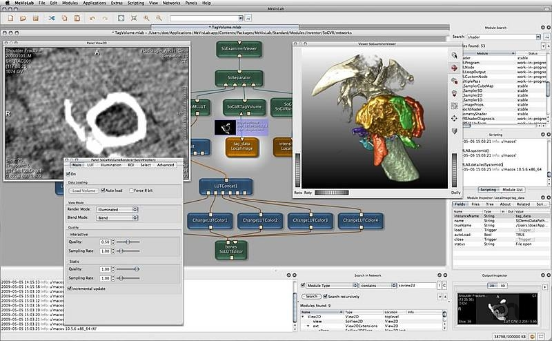 Screenshot 1 for MeVisLab