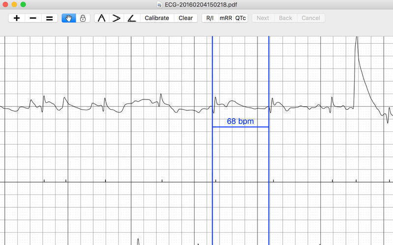 Screenshot 3 for EP Calipers